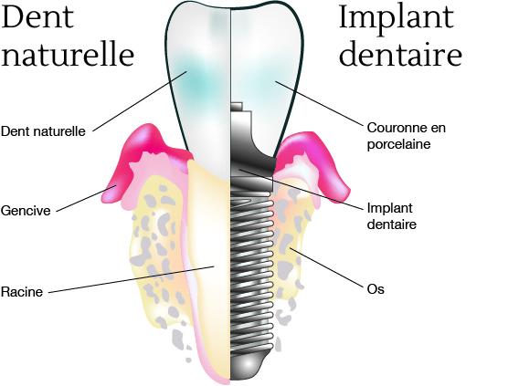 dent_vs_implant_V2